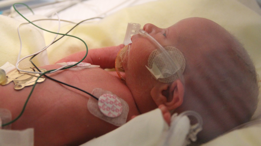 Declan is also only getting 21% oxygen, which is room air.